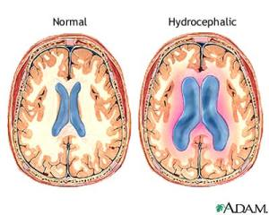 Normal vs.Hydrocephalic Ventricles