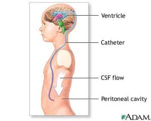 Ventriculoperitoneal Shunt (VP Shunt)