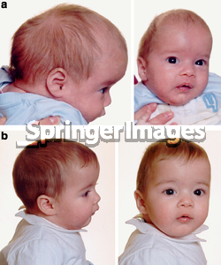 Scaphocephaly Before/After